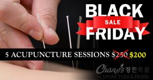 Balck Friday Acupuncture Deal