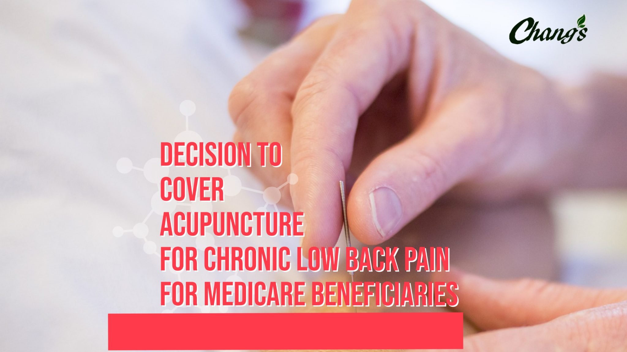 Decision to cover acupuncture for chronic low back pain for medicare beneficiaries